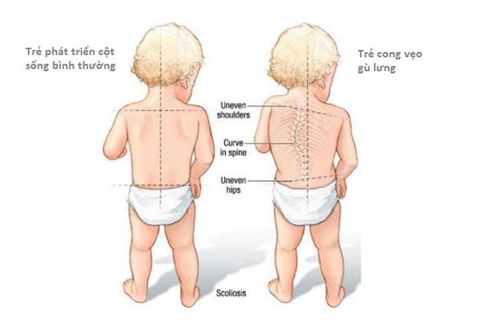 Bệnh gù lưng ở trẻ nhỏ là gì?